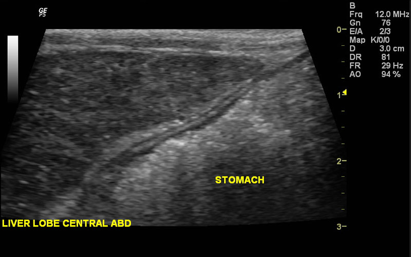 Ultrasound of liver lobe and stomach
